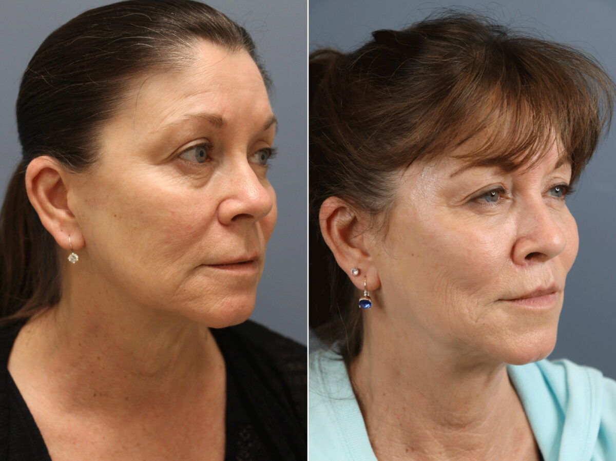 Lip Enhancement Before and After Photos in Lexington, KY, Patient 21601