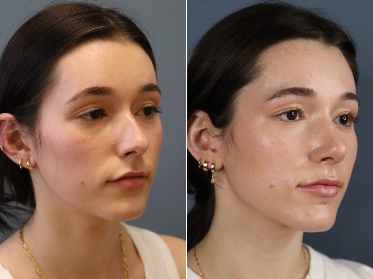 Nose Reshaping (Rhinoplasty) Before and After Photos in Lexington, KY, Patient 21614