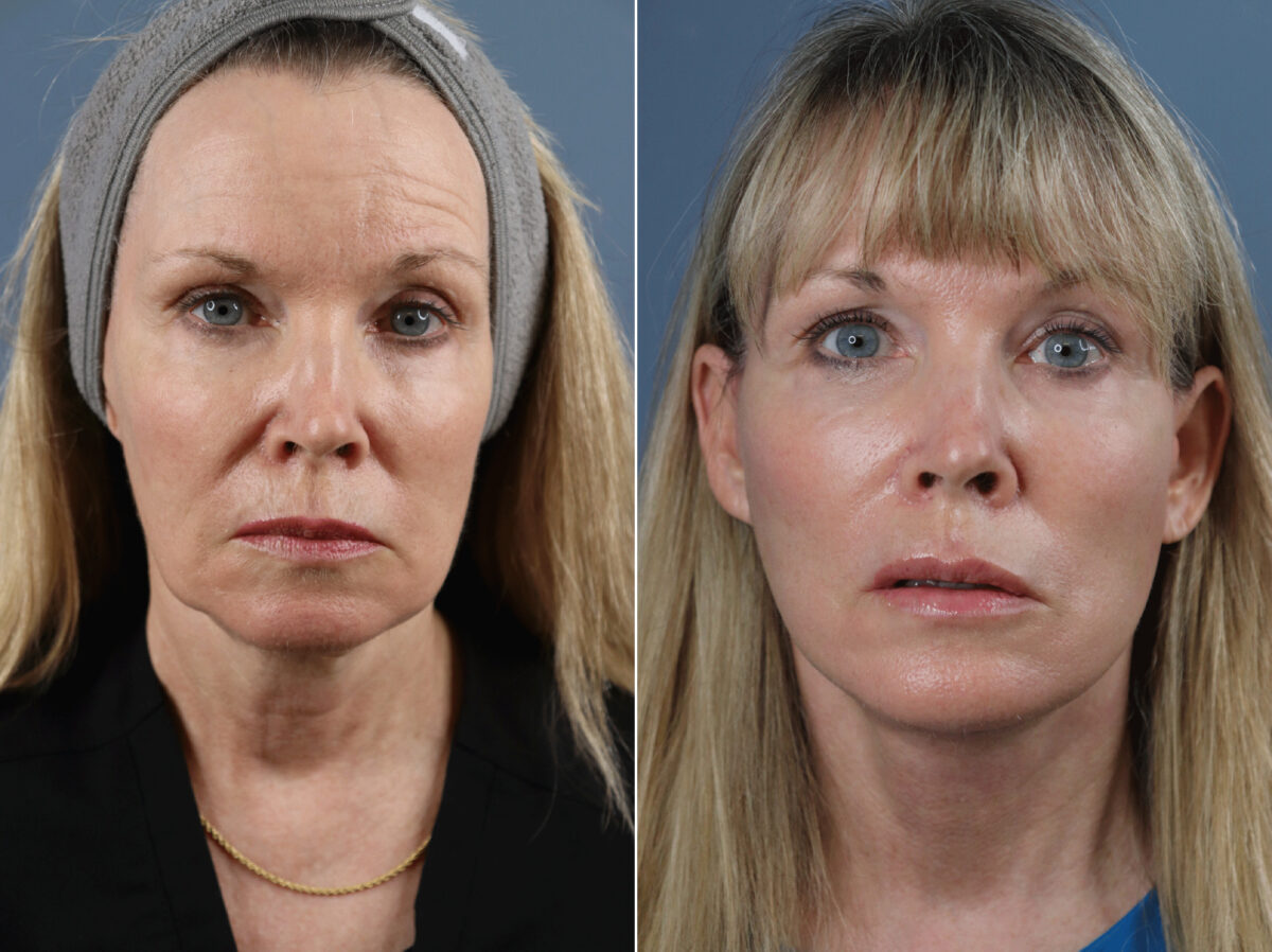 Facelift Before and After Photos in Lexington, KY, Patient 21661