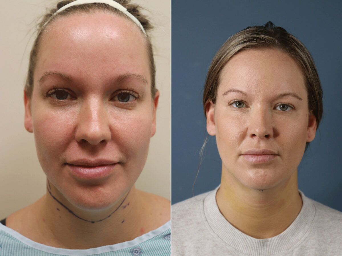 Neck Liposuction Before and After Photos in Lexington, KY, Patient 21673