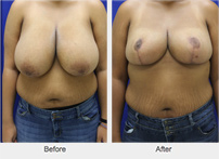 Before and After Breast Reduction