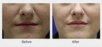 Before and After Injectable Fillers