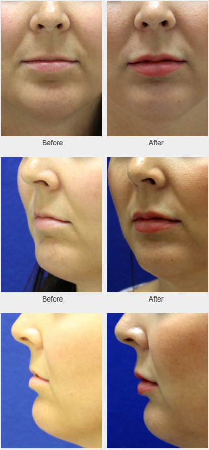Facial cosmetic enhancement are