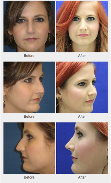 Facial cosmetic enhancement Thanks! Can