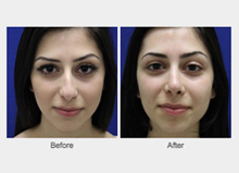 Before and After Nose Enhancement