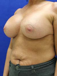 Post breast augumentation visits