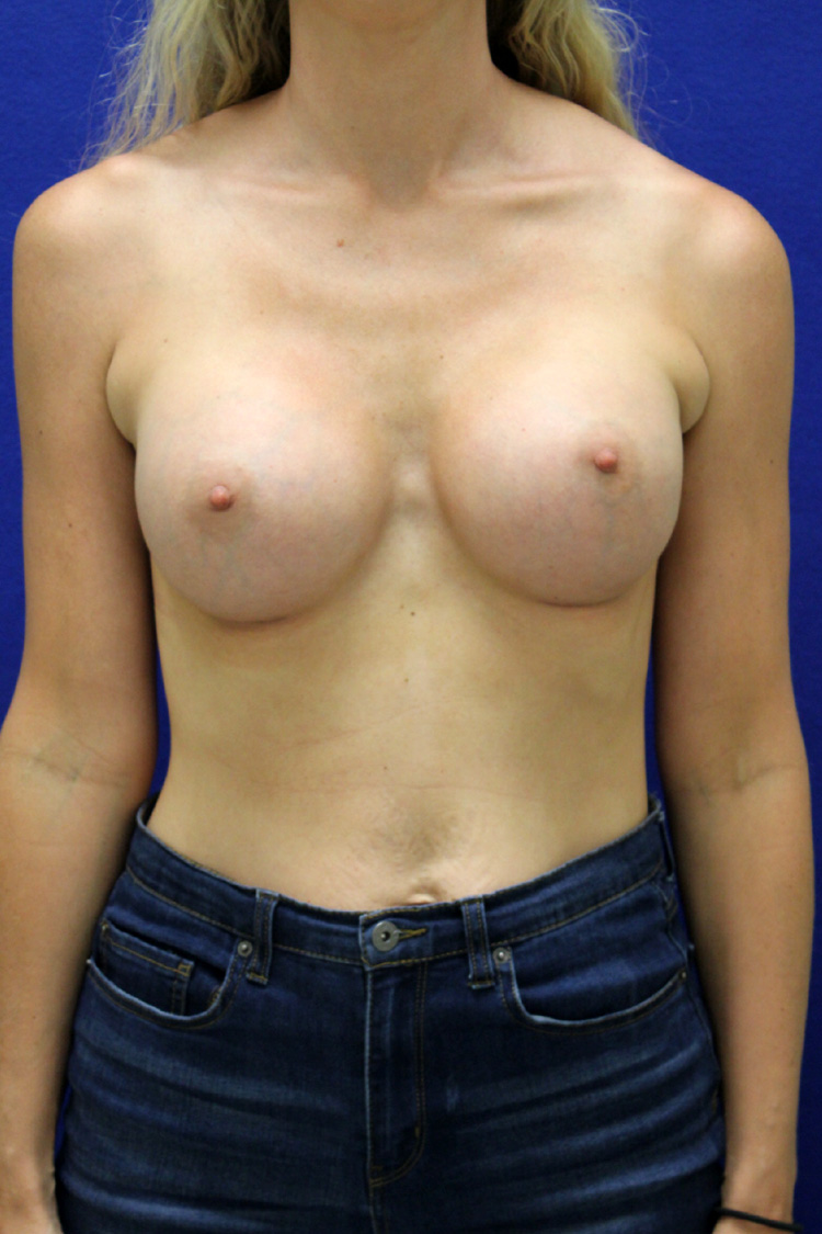 Breast Augmentation Louisville, KY Breast Implants