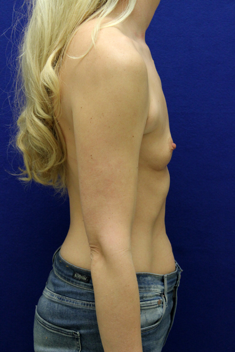Louisville, KY Breast Augmentation - Yellowpagescom