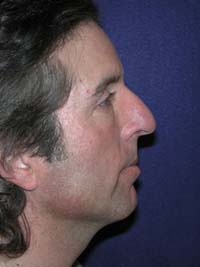 Nose Enhancement Before