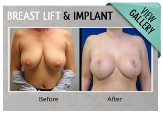 Breast Lift & Implant Gallery