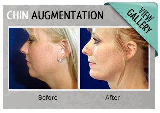 Chin Augmentation Gallery