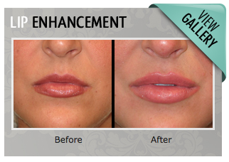 Lip Augmentation Lexington Ky Georgetown Richmond