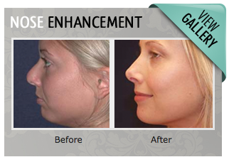 Nose Enhancement Gallery