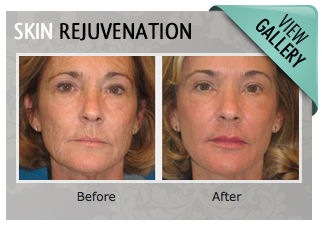 Laser Skin Rejuvenation Gallery